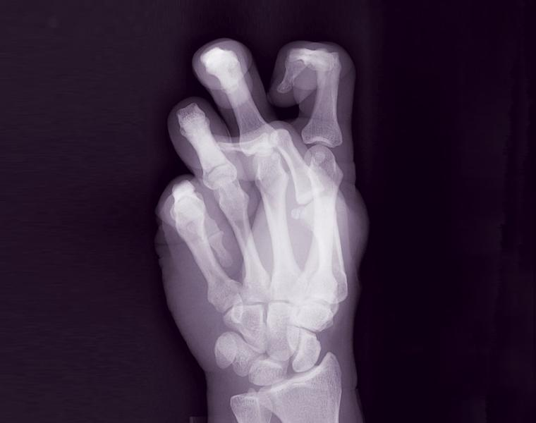 X-ray of
